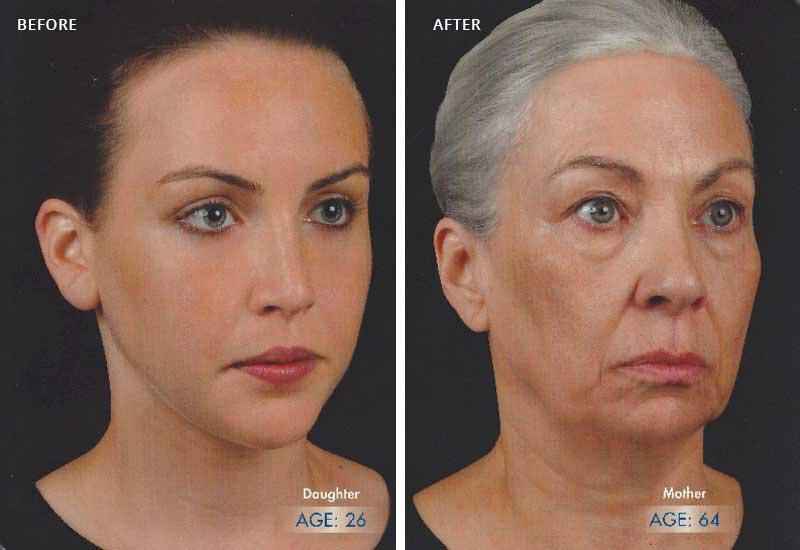 Mother-daughter comparison showing natural progression of face during the aging process.