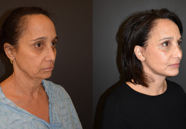 Before & after image showing the reduction in facial sagging and improved overall shape as a result of a facelift by Dr. Cross.
