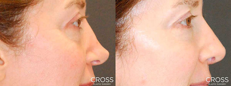 View before & after results from Cross Medical Group in Philadelphia, PA