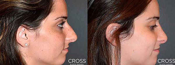 See the results before your Rhinoplasty procedure with Vectra Simulated Results.